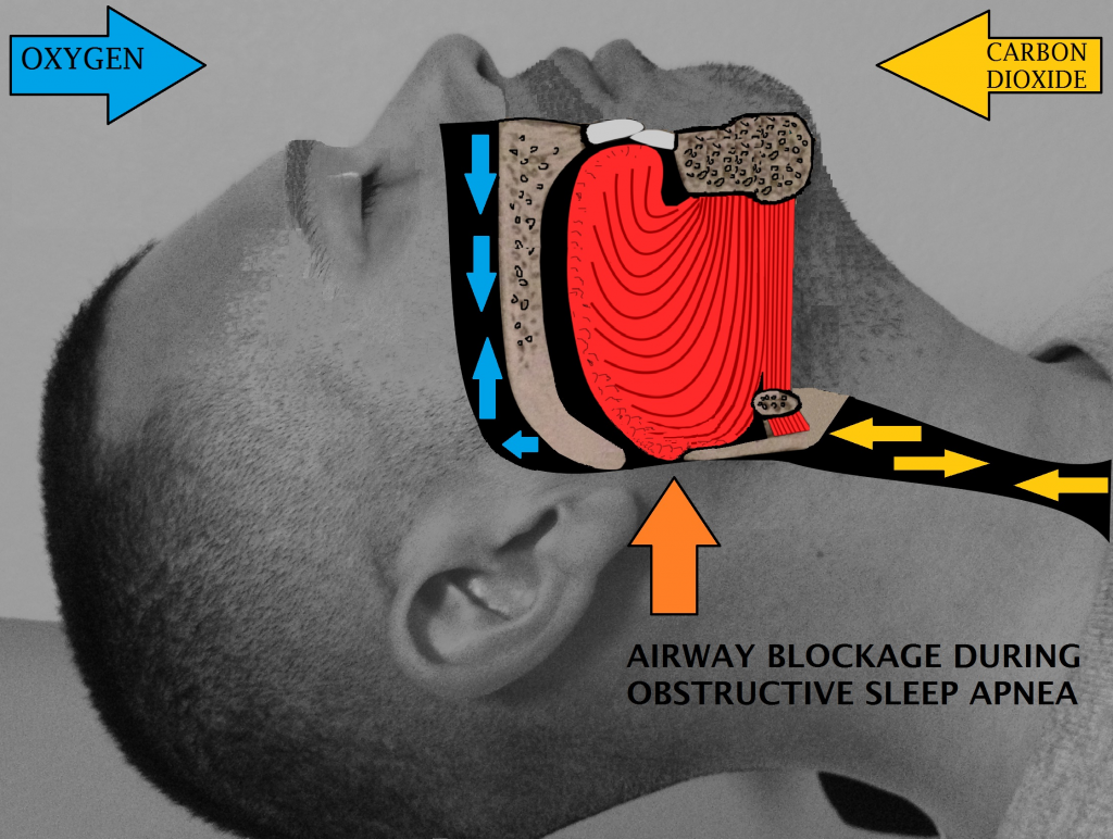 snoring-Airway-obstruction